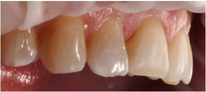 Figure 2: Tooth preparation with facio-incisal bevel and air abrasion.