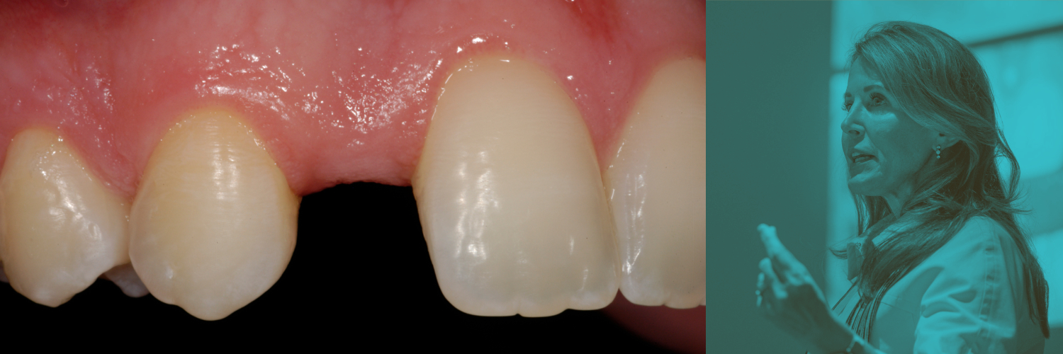 Case Type III: Replacing a Missing Tooth in the Esthetic Zone with Elizabeth M. Bakeman, DDS, FAACD