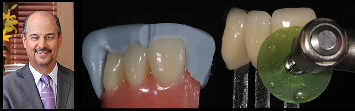 Case Types IV & V: Bonding with Composite for Maximum Esthetics with Brian P. LeSage, DDS, FAACD