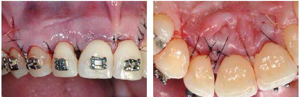 teeth, gums, braces, sutures