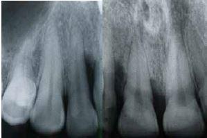 x-ray, teeth