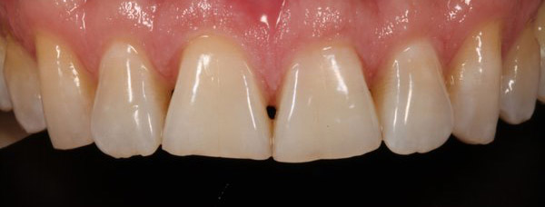 Figure 1: Preoperative view of maxillary central incisors showing incisal wear after orthodontic repositioning.