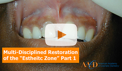 "Multi-Disciplined Restoration of the ""Esthetic Zone""