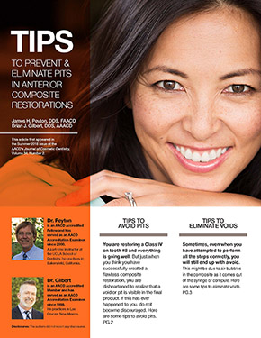 Tips to Prevent and Eliminate Pits in Anterior Composite Restorations