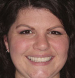 Jennifer Streeter, with treatment by Dr. Ryan Michelson